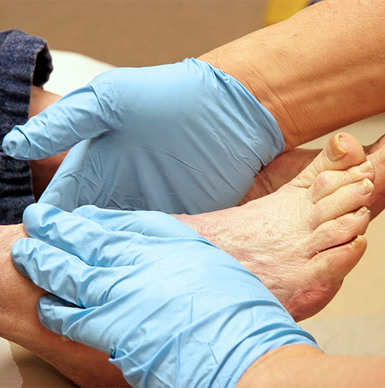 Medical Pedicure in the Greater Toronto Area